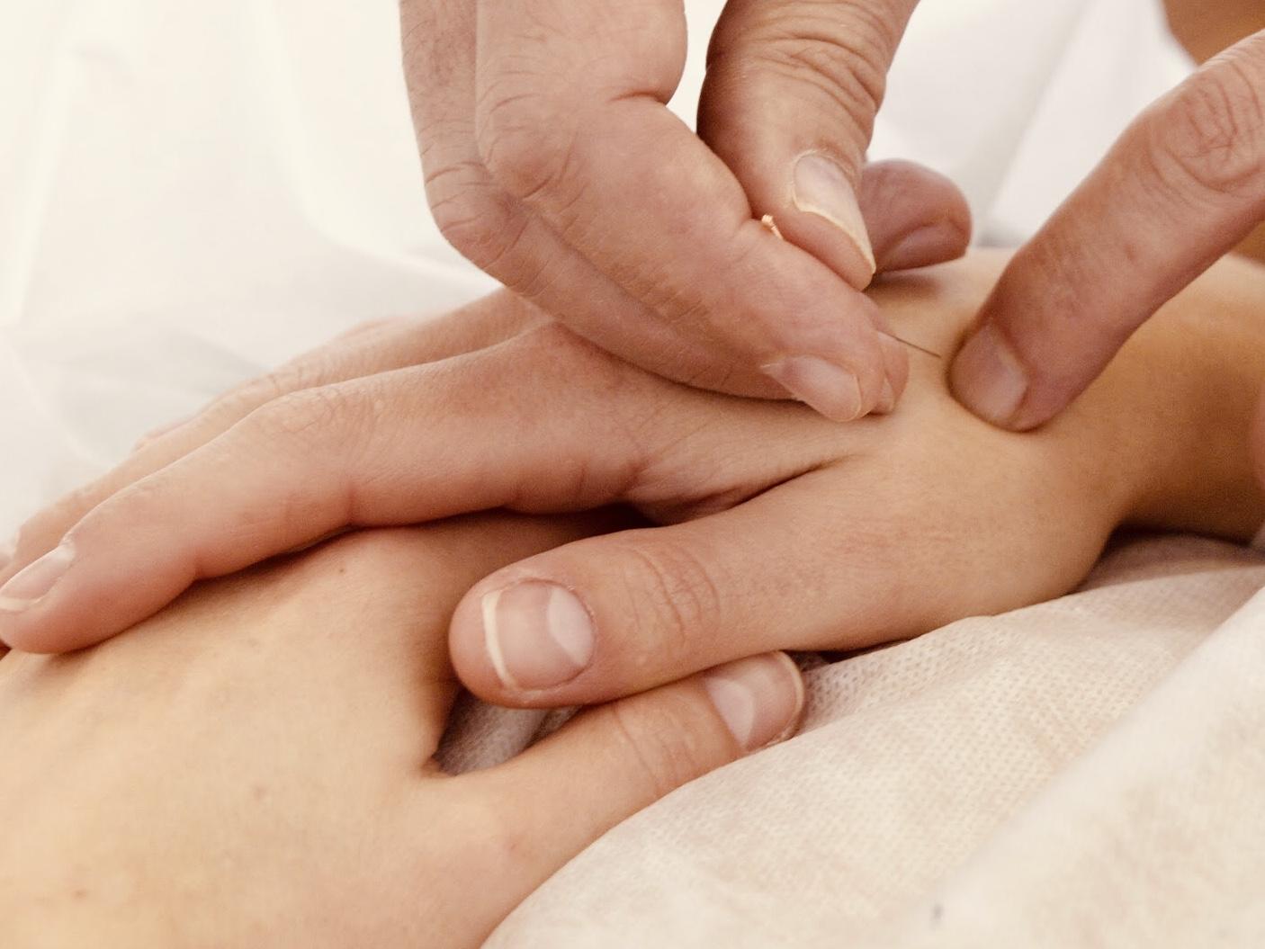 agulha de acupunctura na mão de uma paciente